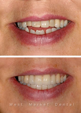 Before and After Cosmetic Treatment | West Market Dental | Calgary Dentist
